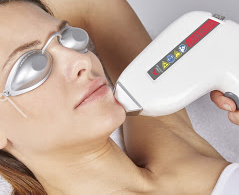 épilation défintive laser diode hd matrix 808 nm femme visage