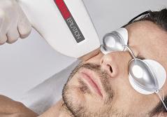 épilation défintive laser diode hd matrix 808 nm homme barbe