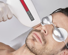 épilation défintive laser diode hd matrix 808 nm homme barbe