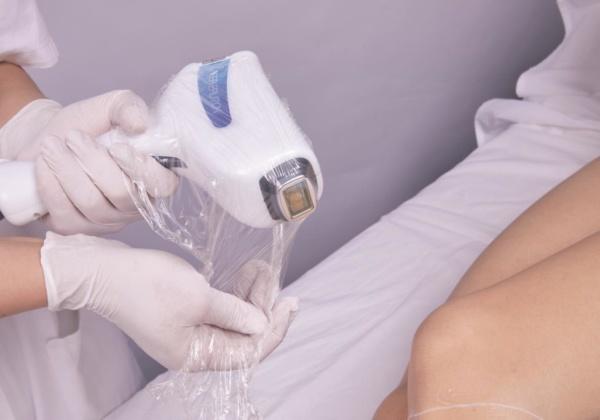 epilation laser hd matrix diode 808 nm - preparation hygiène