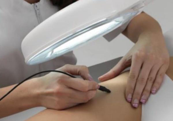 Sinepil - femme jambe - electrolyse Scarlett the beauty centre