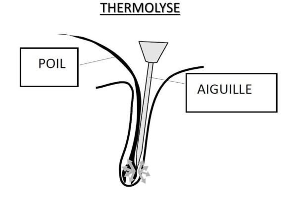 Thermolyse-