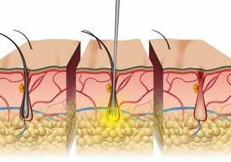 electrolyse - schéma - avant - après